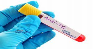 تست هورمونی Thyroglobulin Antibody