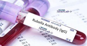 آنتي بادي Rubella IgG