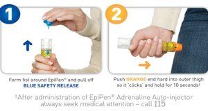 شوك آنافيلاكسي (شوك آلرژيك) | Anaphylaxis