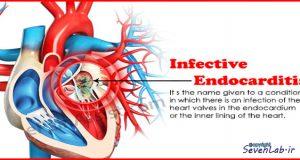 آندوكارديت | Endocarditis