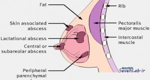 آبسه‌ پستان‌ | breast abscess