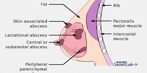 آبسه پستان | breast abscess